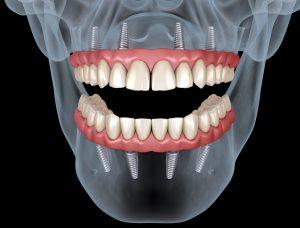 livonia dental implant dentures