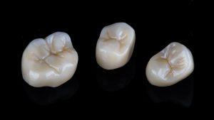 livonia dental crown