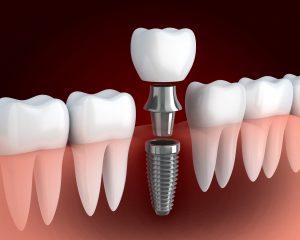 livonia dental implants