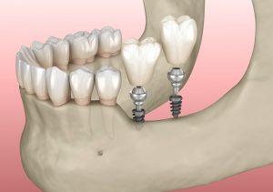livonia mini implants