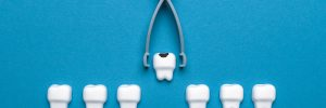 livonia tooth loss