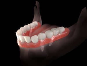 livonia teeth in a day